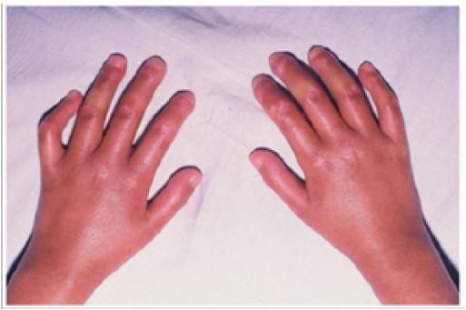Lupus Erythematosus, Dermatomyositis and | Enliven Archive